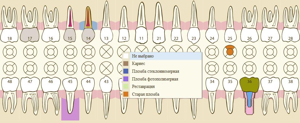 Графическое представление зубной формулы в 1С Стоматологическая клиника