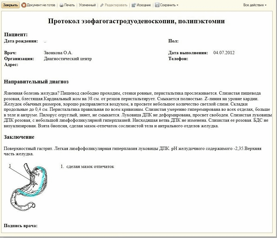 Протокол ЭГДС в 1С Медицина